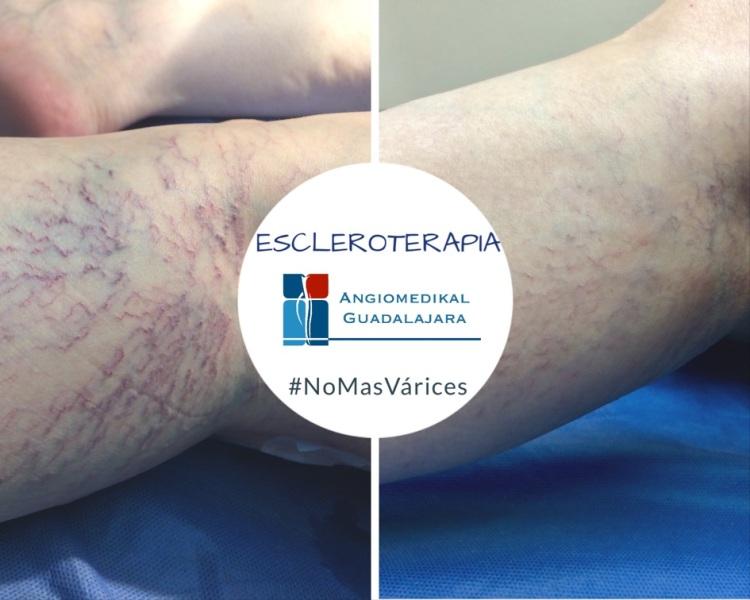 Manejo de la insuficiencia venosa Grado 1 con escleroterapia